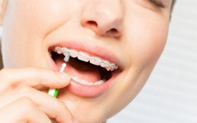 Appareil fixe et hygiène bucco-dentaire